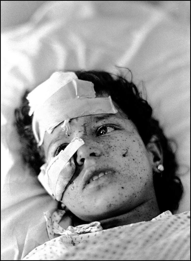 'Injured Child' Kabul, Afghanistan 1990